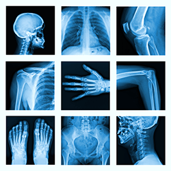 diagnostic-imaging-center-xray